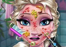 艾莎脸部治疗